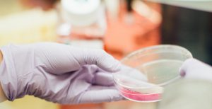 תרבית חיידקים
